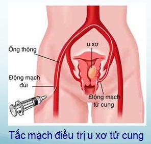 tắc mạch u xơ tử cung