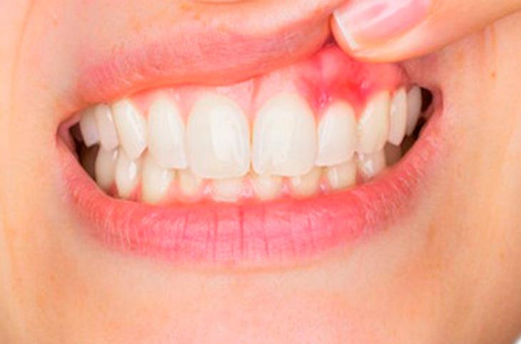 Áp-xe răng miệng