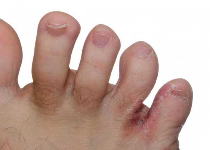 bệnh về da