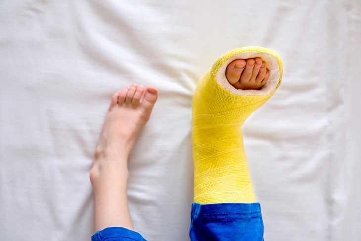 Bó bột chân