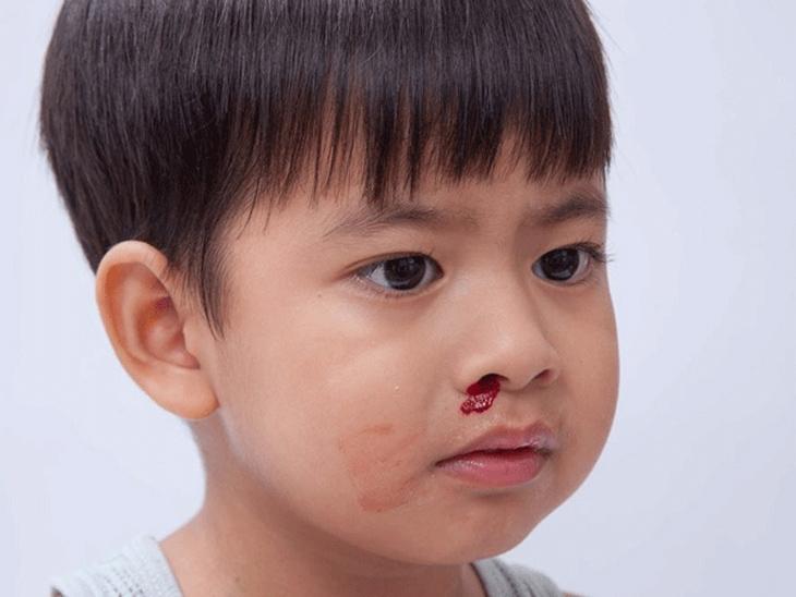 chảy máu mũi