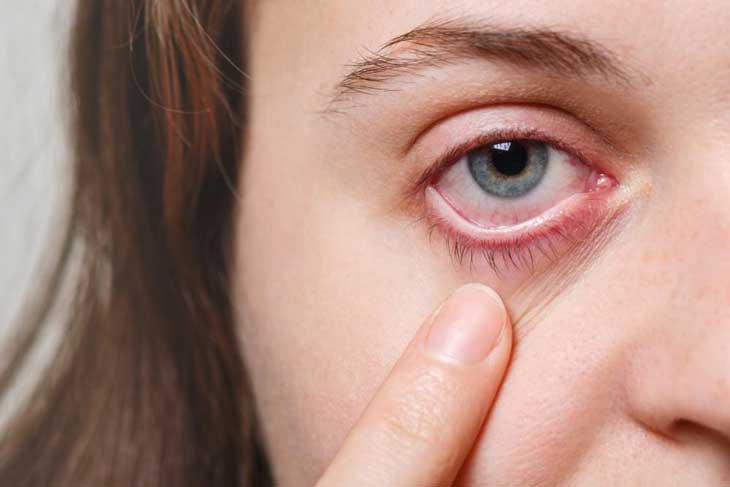 đau mắt do nấm