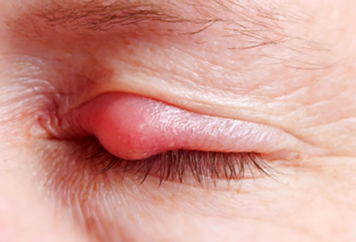 đau mắt hột