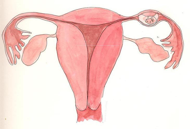 Dính tử cung