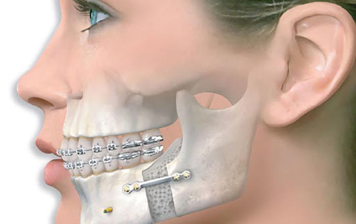gãy xương hàm