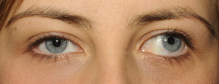 Lác mắt