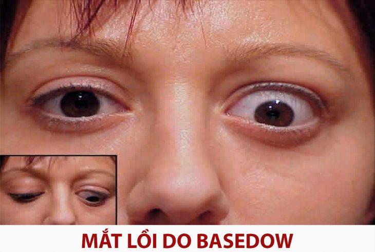 lồi mắt sau bệnh Basedow