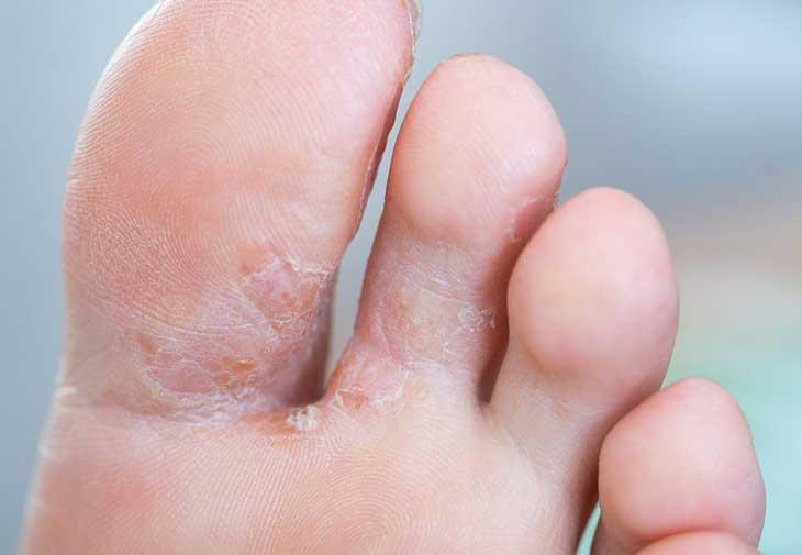 nấm chân