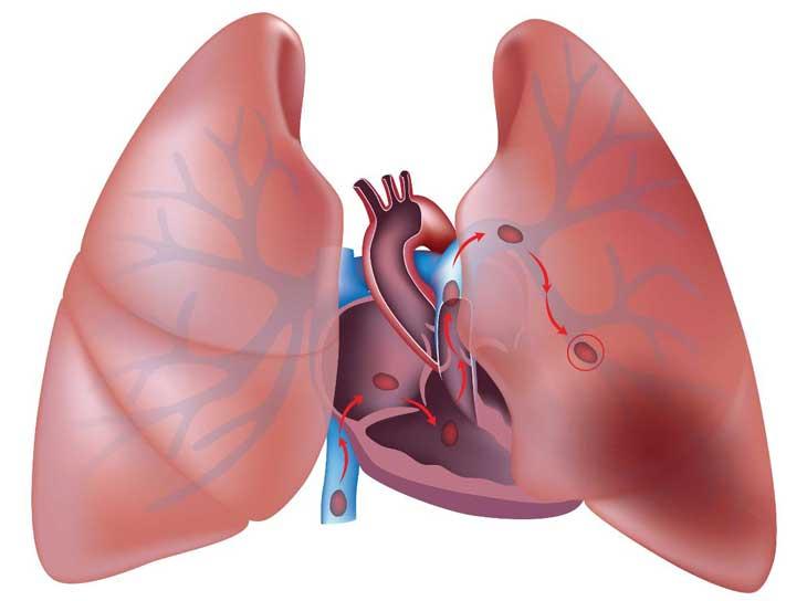 nghẽn mạch phổi