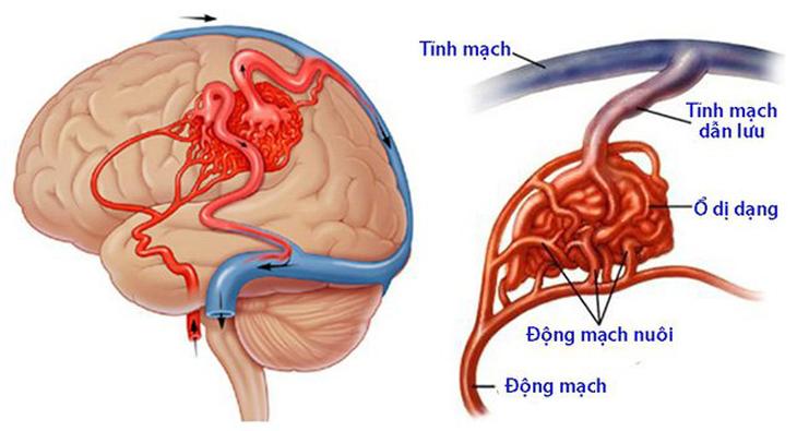 thông động tĩnh mạch