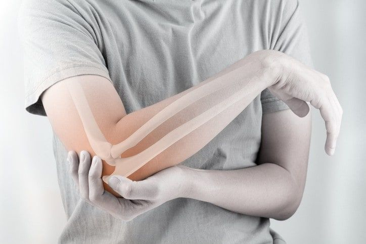 Trật khớp khuỷu tay