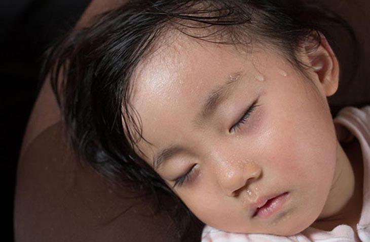 trẻ đổ mồ hôi nhiều khi ngủ