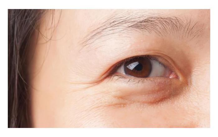 nếp nhăn nơi khóe mắt