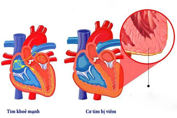 bệnh thấp tim