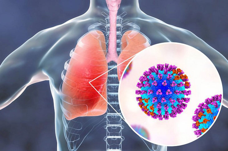 viêm đường hô hấp cấp