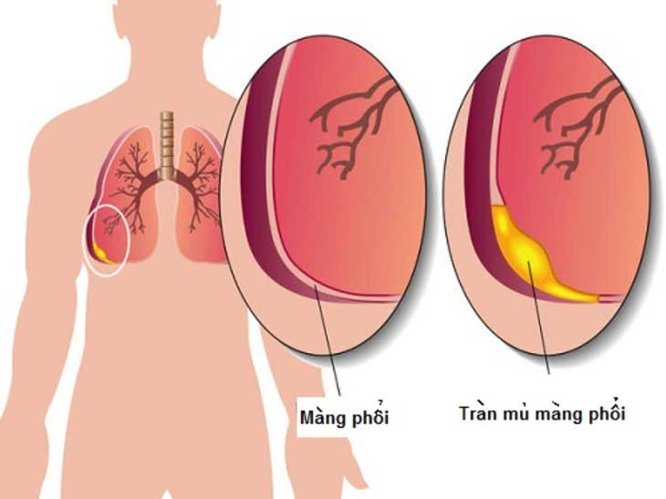 viêm phổi tụ cầu