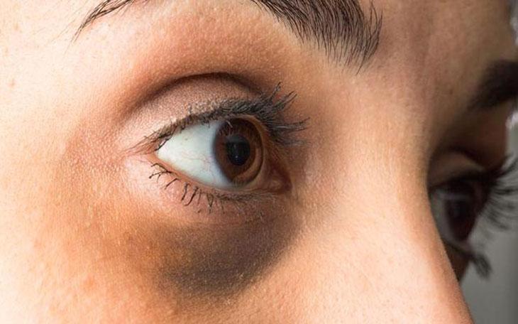 chăm sóc vùng mắt