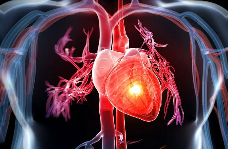 xạ hình cơ tim