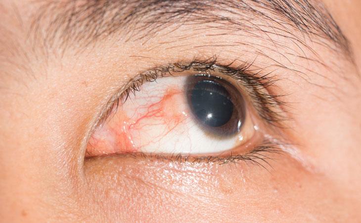Xuất huyết mắt