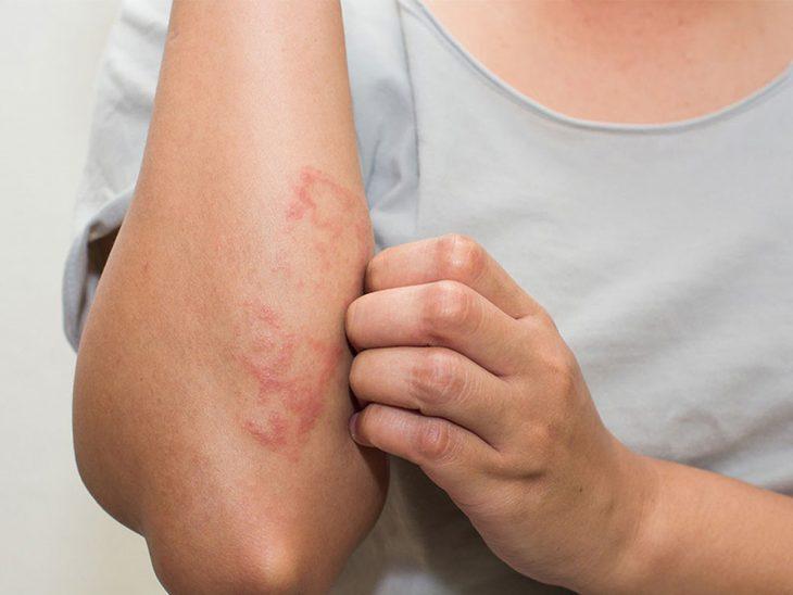 benh-eczema