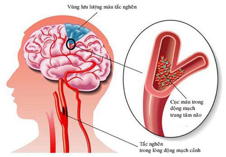 bệnh nhồi máu não cấp