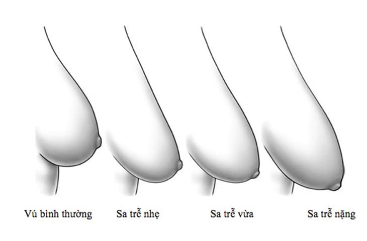 phau-thuat-san-chac-vong-1