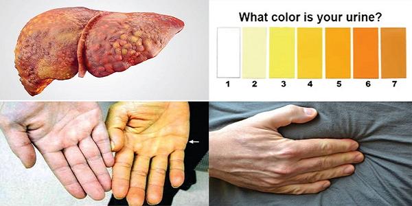 Triệu chứng của hội chứng gan thận