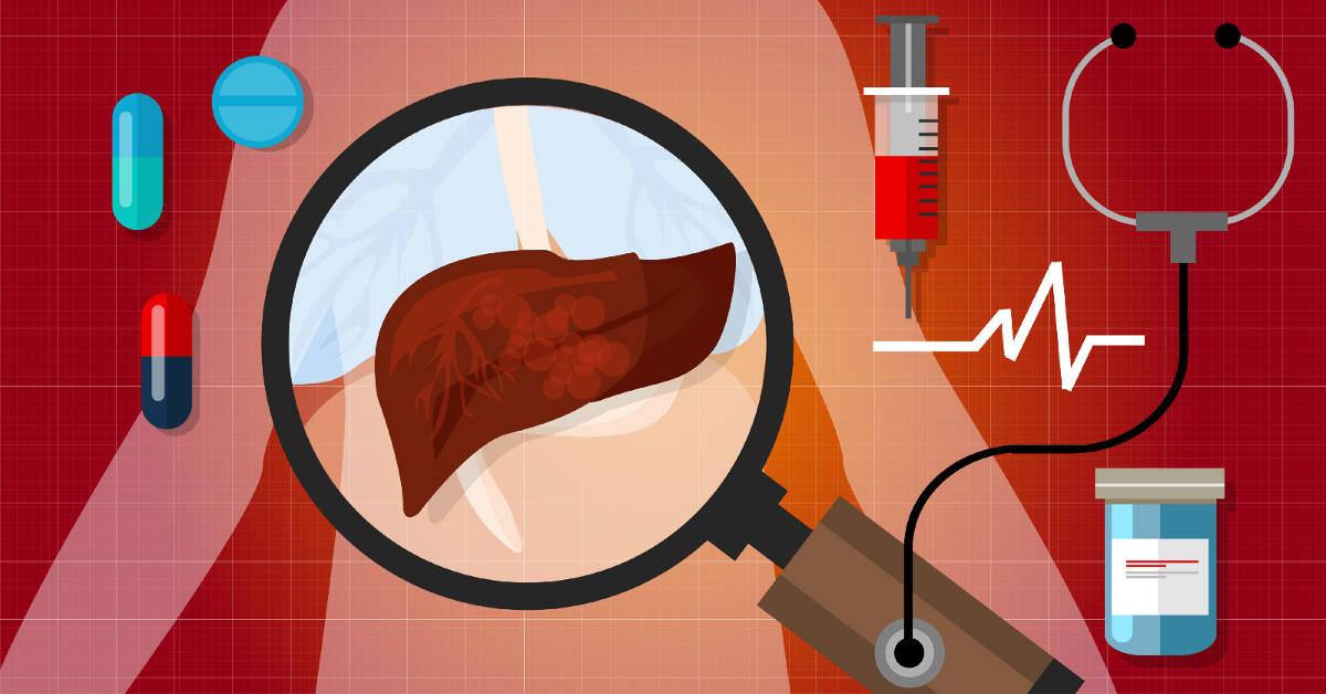 Các bệnh về gan sẽ khiến cho chỉ số AST tăng cao