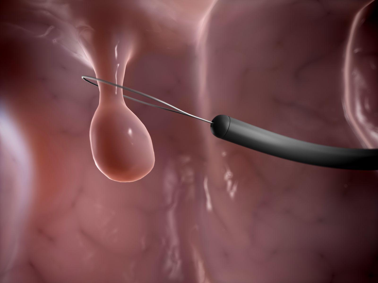 Sau khi cắt polyp đại tràng