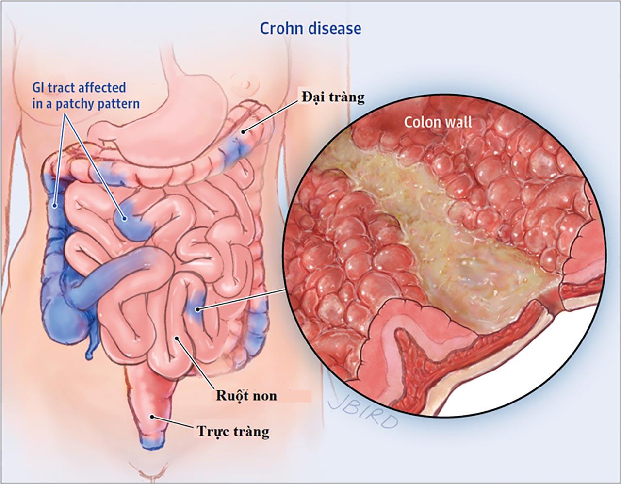 Tổng hợp] Thông tin cần biết về bệnh Crohn