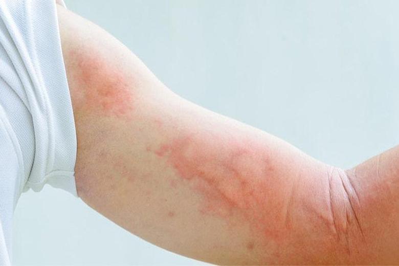 Sẩn ngứa nnag lông là bệnh ngoài da ở mẹ bầu thường mắc phải
