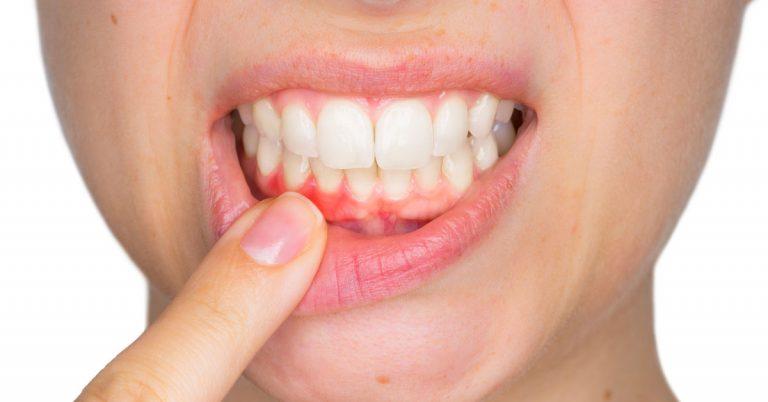 Bà bầu bị đau răng so sự thay đổi của nhiều yếu tố trong cơ thể