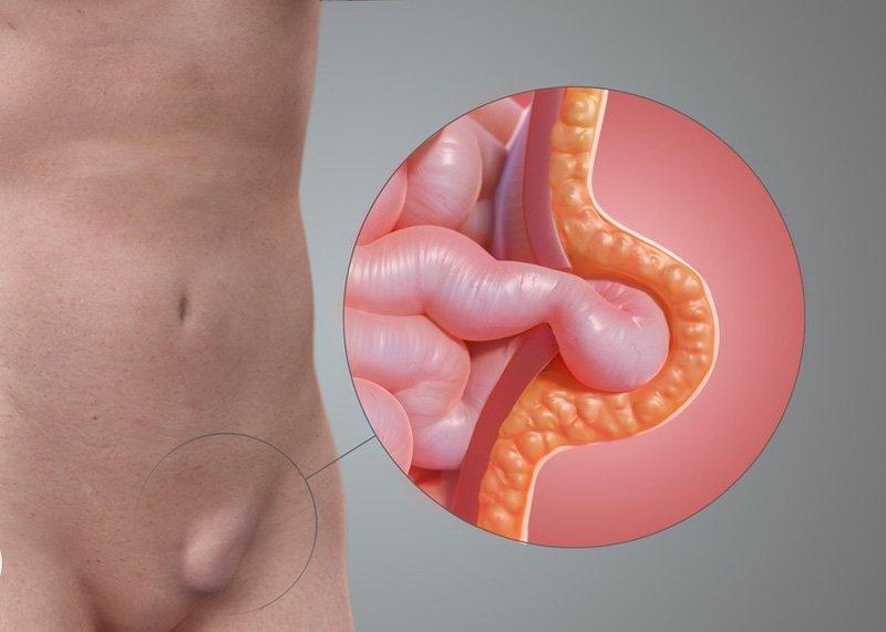 Đau bụng dưới bệnh phải có thê do thoát vị bẹn gây ra