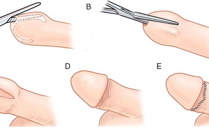 Phẫu thuật cắt bao quy đầu