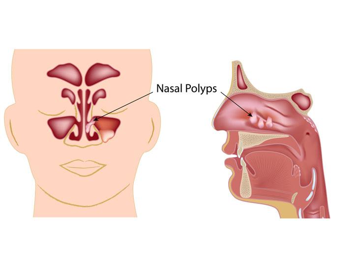 bệnh về mũi