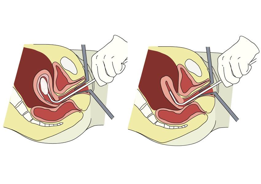 hút thai an toàn