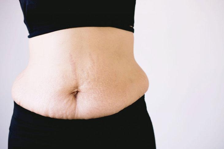 Tăng cân sau sinh