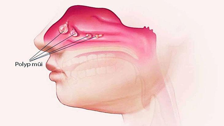 Cách làm teo polyp mũi